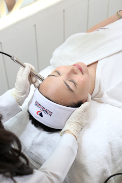 Microdermabrasion Diamond Peel Face